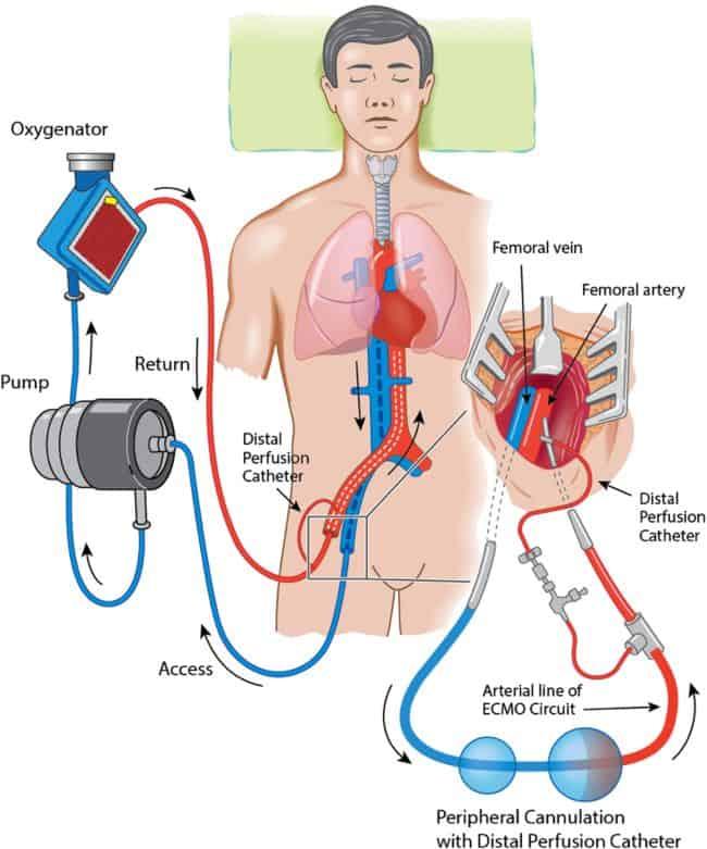 ECMO (extra corporeal membrane oxygenation), salah satu modalitas terapi oksigen untuk tatalaksana Covid-19 yang kritis
