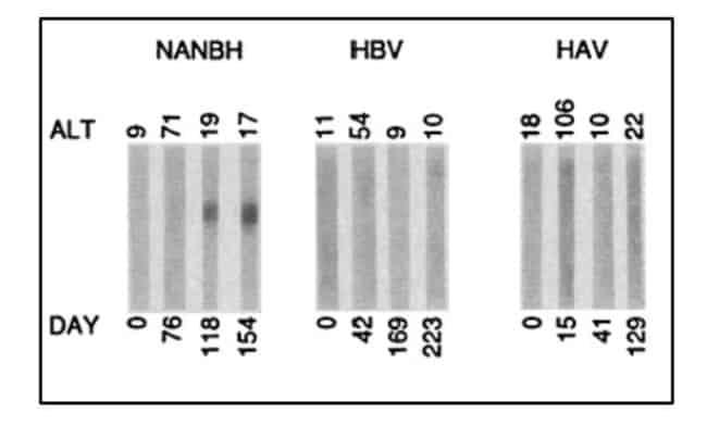 Pemeriksaaan iminoblot serum terhadap ORF 5-1-1 secara serial terhadap simpanse yang terinfeksi HNANB, HAV dan HBV